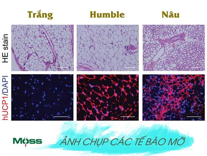 Các loại tế bào mỡ trong cơ thể
